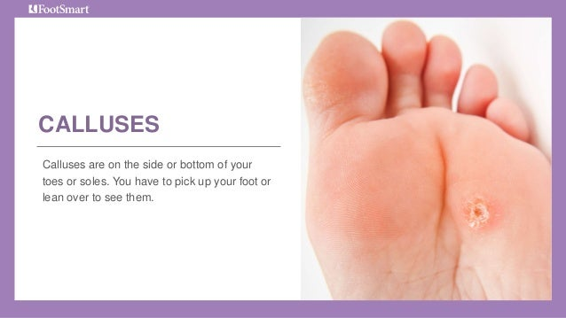 how to get swelling down in feet