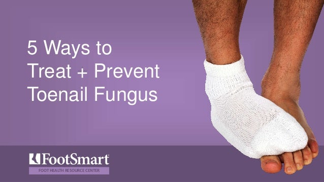 5 Ways to treat & prevent toenail fungus
