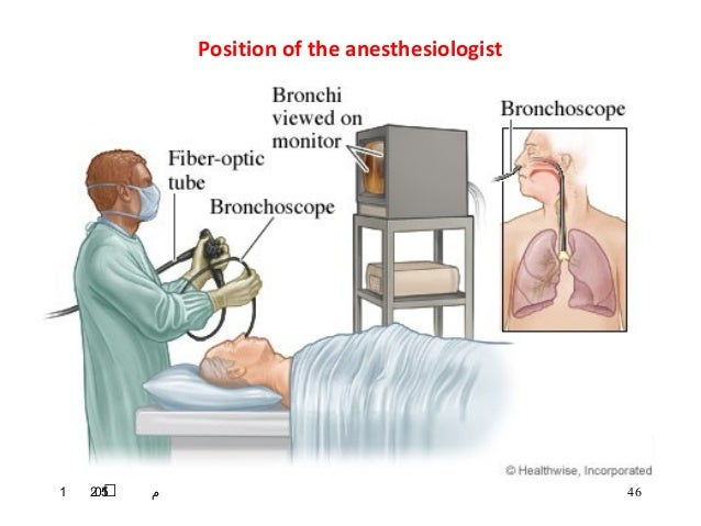 Fiberoptic intubation