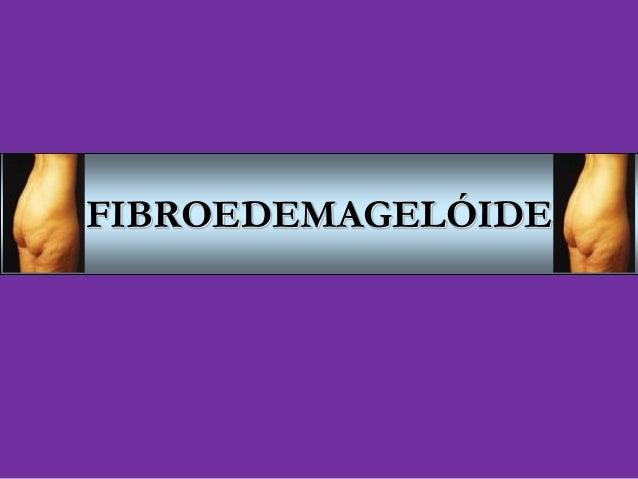 FIBROEDEMAGELÓIDE