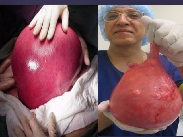 Fibroid Pain Location
