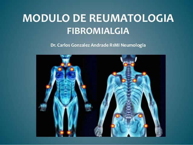 MODULO DE REUMATOLOGIA FIBROMIALGIA Dr. Carlos Gonzalez Andrade R1MI Neumologia