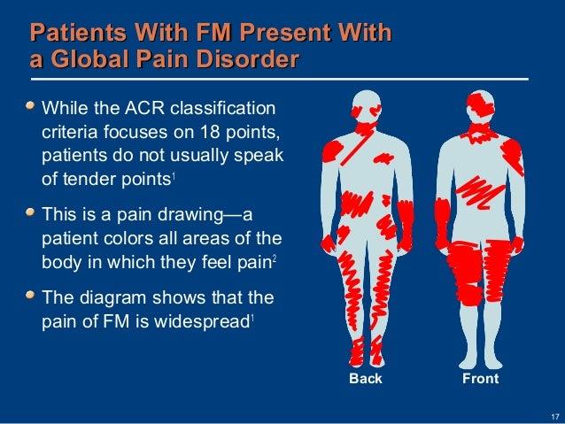 Fibromyalgia disease overview