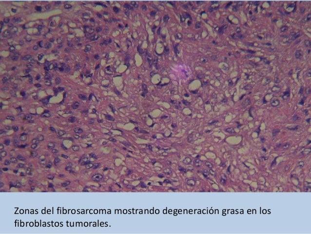Fibrosarcoma, zona de producción de colágeno.