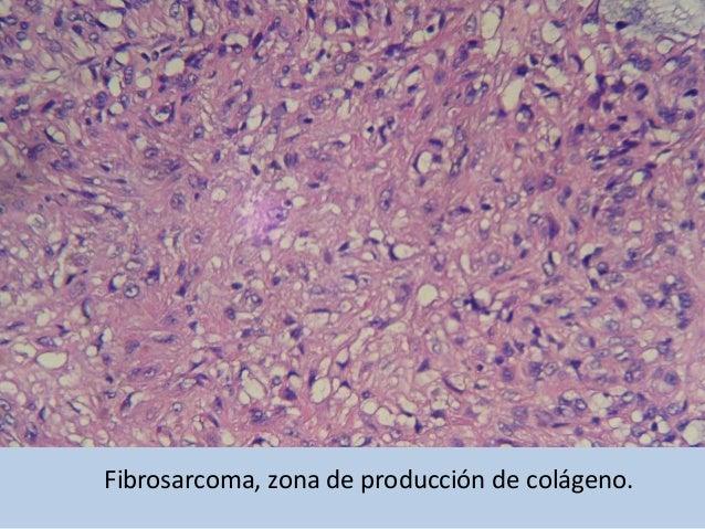 FIBROSARCOMA