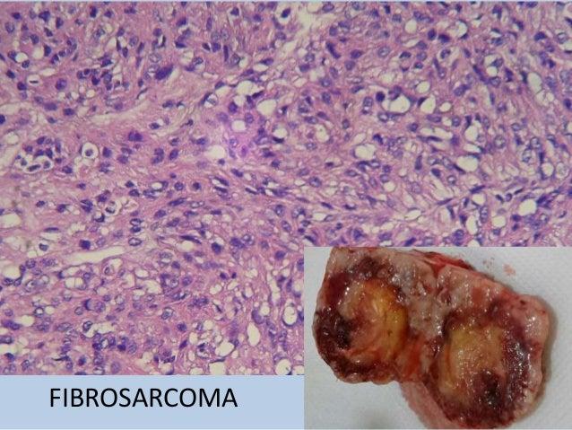 Fibrosarcoma  mamario can Paulina