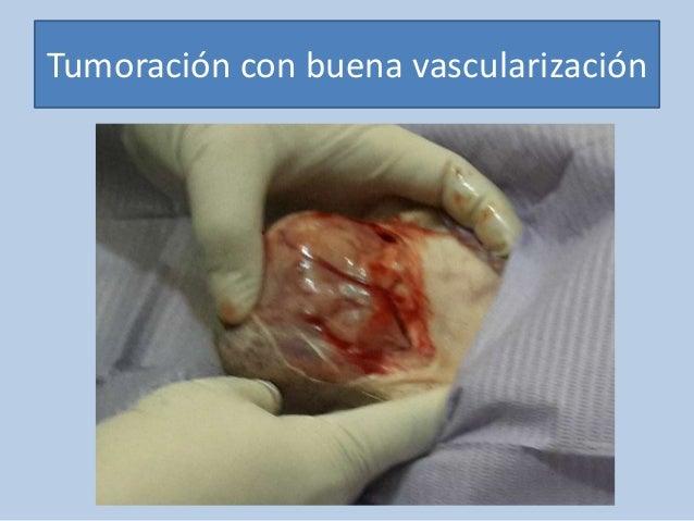 Tumoración con buena vascularización