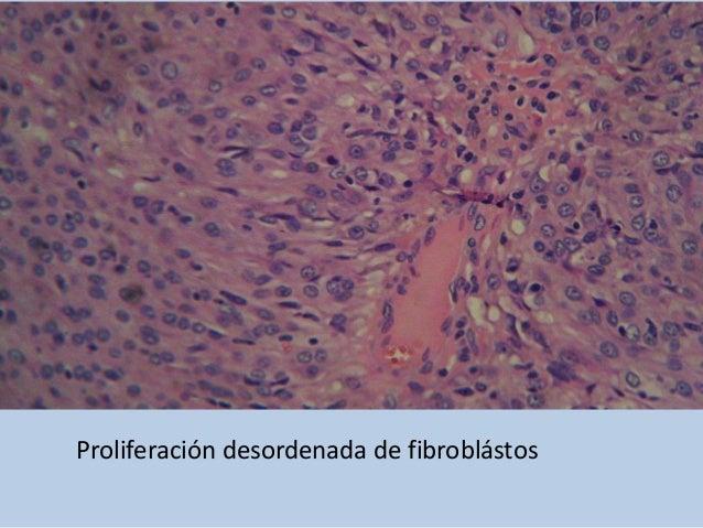 Zonas del fibrosarcoma mostrando degeneración grasa en los fibroblastos tumorales.