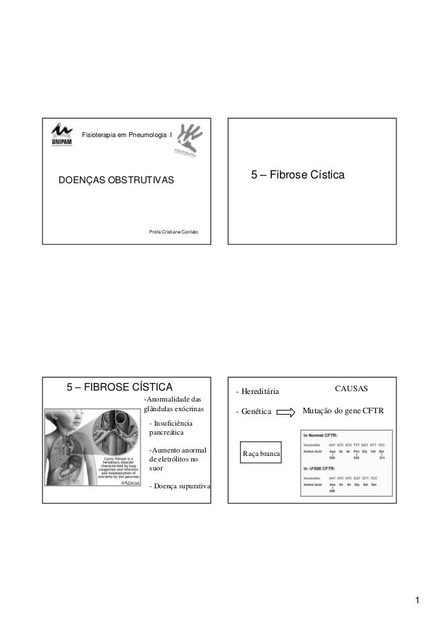 1 Fisioterapia em Pneumologia I DOENÇAS OBSTRUTIVAS Profa Cristiane Contato 5 – Fibrose Cística 5 – FIBROSE CÍSTICA - Insu...