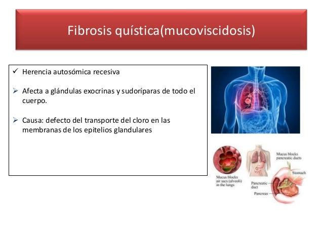 Fibrosis quistica Slide 2