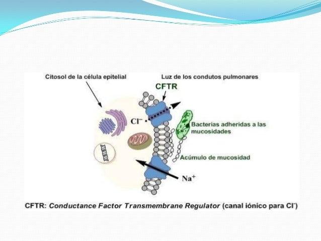  Fisioterapia de movilización de líquidos espesos de vías respiratorias.  Fisioterapia para movilización de materia inte...