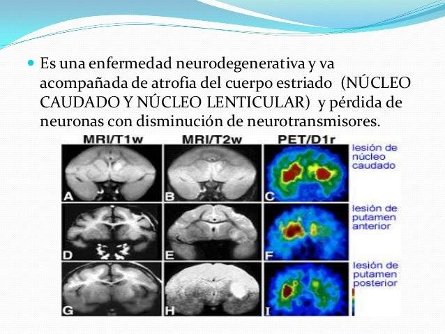  Es una enfermedad neurodegenerativa y va acompañada de atrofia del cuerpo estriado (NÚCLEO CAUDADO Y NÚCLEO LENTICULAR) ...