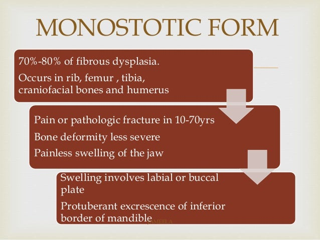 Fibrous Dysplasia Of Jaw