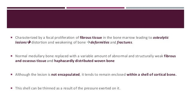 fibrous dysplasia of sphenoid bone, Human Body