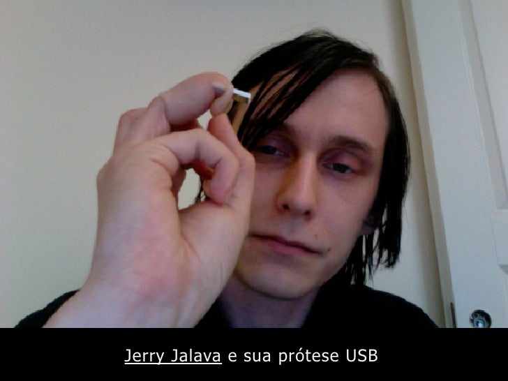 Jerry Jalava e sua prótese USB