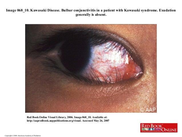 Atypical Kawasaki Disease Prognosis