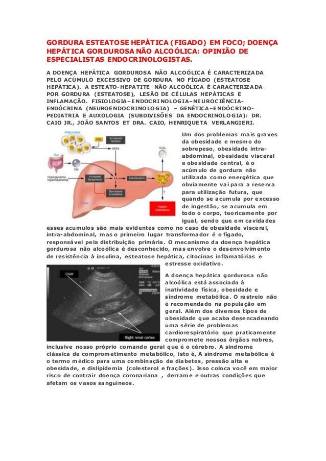 GORDURA ESTEATOSE HEPÁTICA (FIGADO) EM FOCO; DOENÇA HEPÁTICA GORDUROSA NÃO ALCOÓLICA: OPINIÃO DE ESPECIALISTAS ENDOCRINOLO...