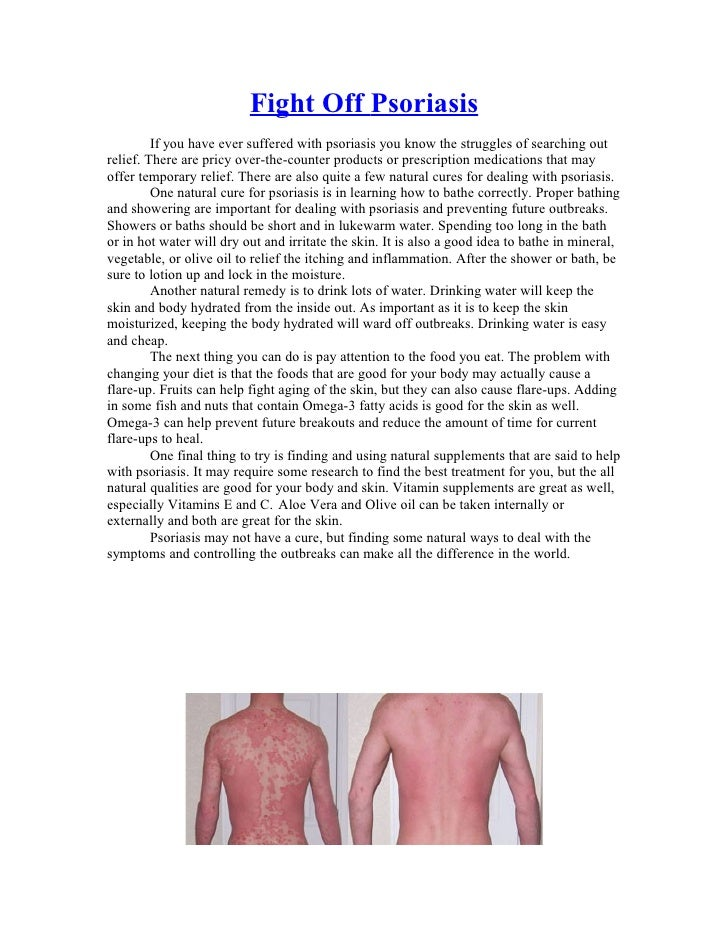 Fight Off Psoriasis         If you have ever suffered with psoriasis you know the struggles of searching outrelief. There ...