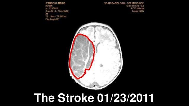 The Stroke 01/23/2011