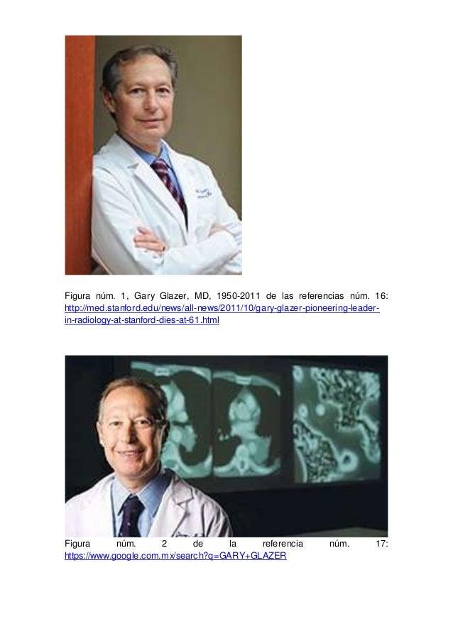 Figura núm. 1, Gary Glazer, MD, 1950-2011 de las referencias núm. 16: http://med.stanford.edu/news/all-news/2011/10/gary-g...