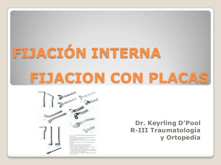 FIJACION CON PLACAS<br />FIJACIÓN INTERNA<br />Dr. Keyrling D'Pool<br />R-III Traumatología        y Ortopedia<br />