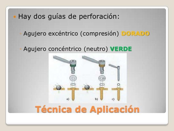 Hay dos guías de perforación:<br />Agujero excéntrico (compresión) DORADO<br />Agujero concéntrico (neutro) VERDE<br />Téc...