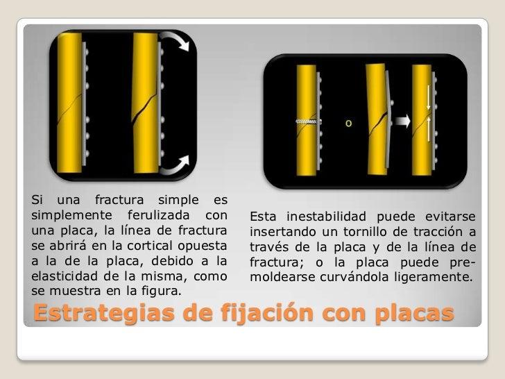 Si una fractura simple es simplemente ferulizada con una placa, la línea de fractura se abrirá en la cortical opuesta a la...