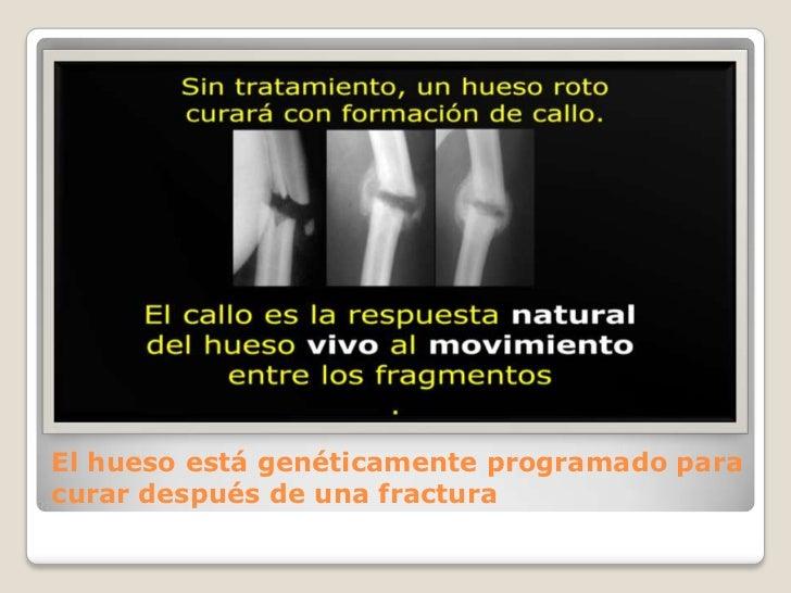 El hueso está genéticamente programado para curar después de una fractura<br />