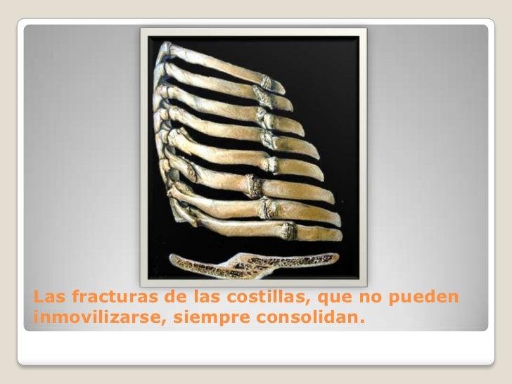 Las fracturas de las costillas, que no pueden inmovilizarse, siempre consolidan.<br />