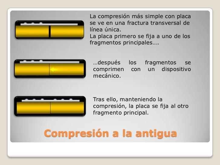 La compresión más simple con placa se ve en una fractura transversal de línea única.<br />La placa primero se fija a uno d...