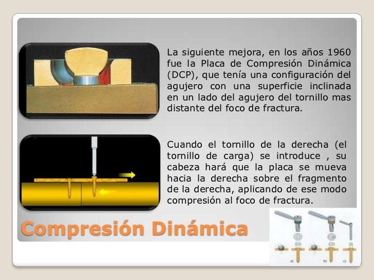 La siguiente mejora, en los años 1960 fue la Placa de Compresión Dinámica (DCP), que tenía una configuración del agujero c...