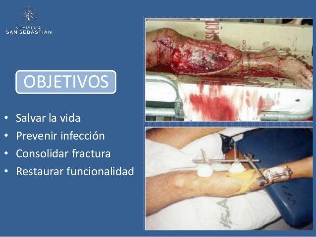 OBJETIVOS•   Salvar la vida•   Prevenir infección•   Consolidar fractura•   Restaurar funcionalidad