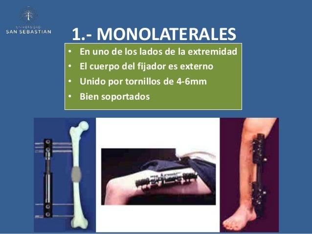 1.- MONOLATERALES•   En uno de los lados de la extremidad•   El cuerpo del fijador es externo•   Unido por tornillos de 4-...