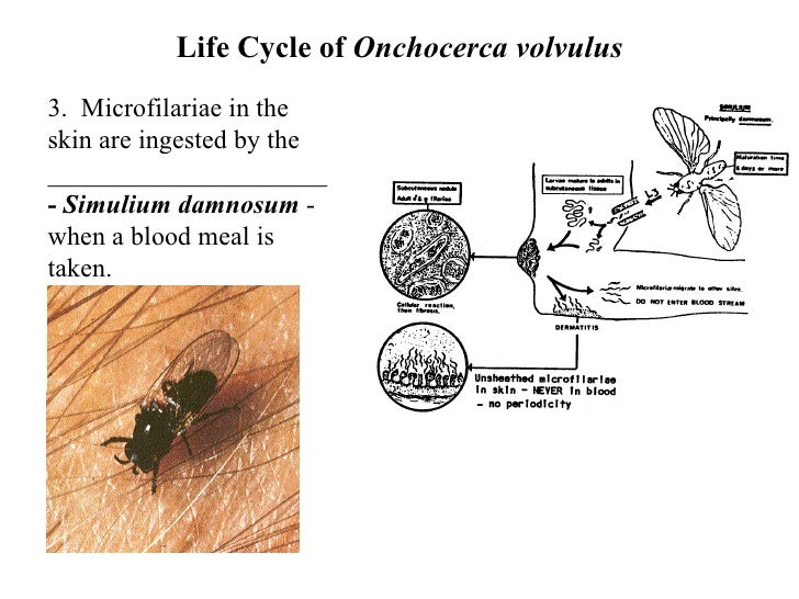 Filarial Worms Life Cycle Filarial Nemato...