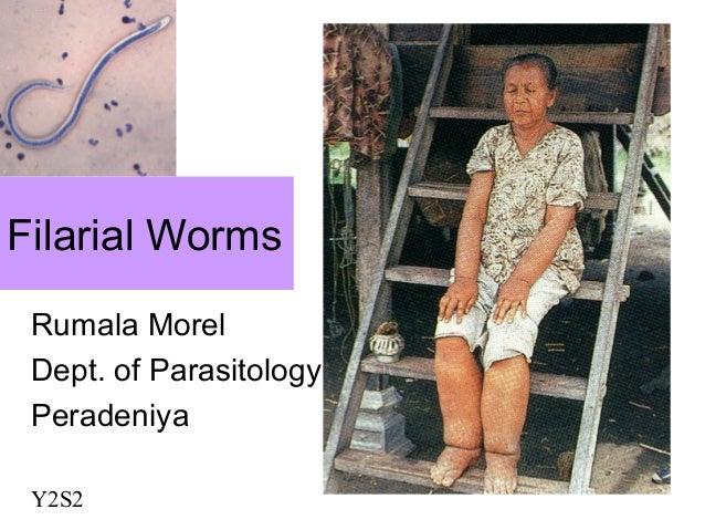 Filarial WormsRumala MorelDept. of ParasitologyPeradeniyaY2S2