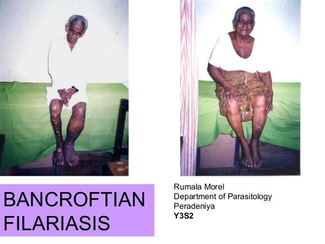 BANCROFTIANFILARIASISRumala MorelDepartment of ParasitologyPeradeniyaY3S2