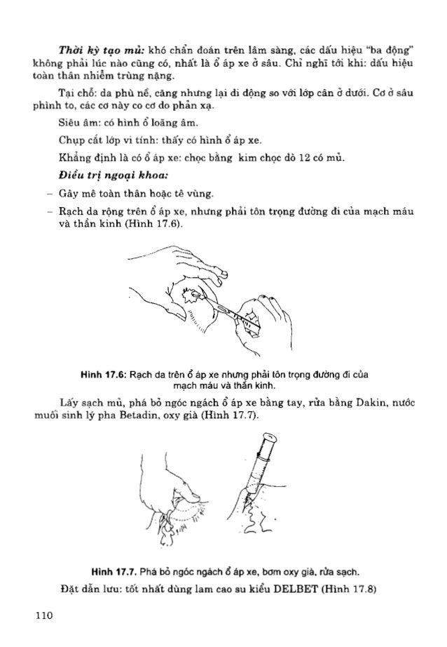 Phẫu thuật thực hành - Bộ Y Tế