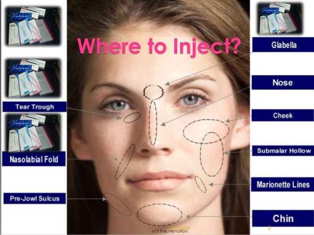 face lift injection