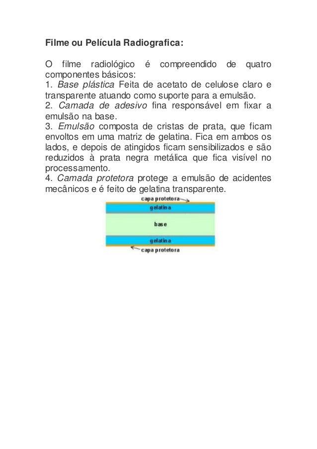 Filme ou Película Radiografica: O filme radiológico é compreendido de quatro componentes básicos: 1. Base plástica Feita d...
