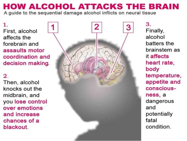 Image result for List different ways fetal alcohol syndrome could lead to brain damage