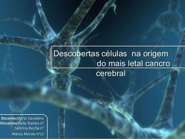 Descobertas células na origem                                     do mais letal cancro                                    ...