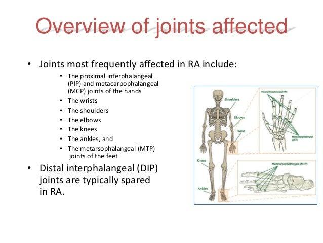 Rheumatoid Arthritis Early Diagnosis And Treatment