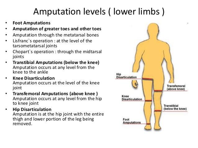 Gangrene & amputation