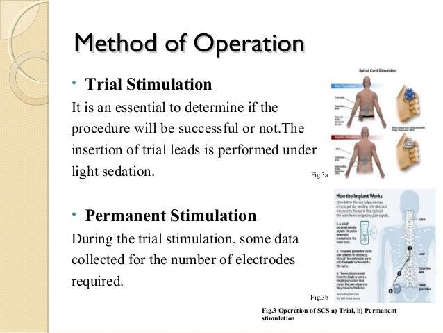 Spinal Cord Stimulation