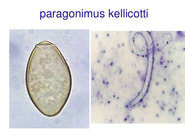 paragonimus kellicotti worm - photo #9