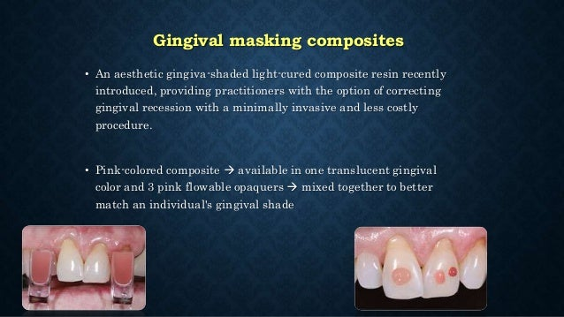 • Low stress applications but not in class I and II in premolars and molars. • Resurfacing composite or GIC restorations o...