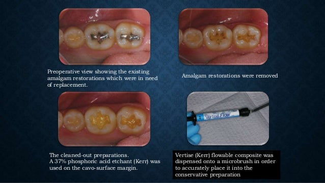 • Because Compobonds function both as a dentine adhesive and a resin restorative material, a Longer Curing Time Is Necessa...