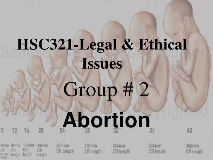 HSC321-Legal & Ethical       Issues     Group # 2     Abortion