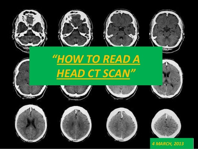 Basics Of Ct Head