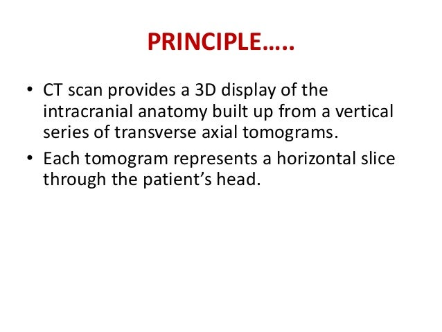 TECHNIQUE…..Slice thickness mayvary, but in general, it isbetween 5 and 10 mmfor a routine Head CT